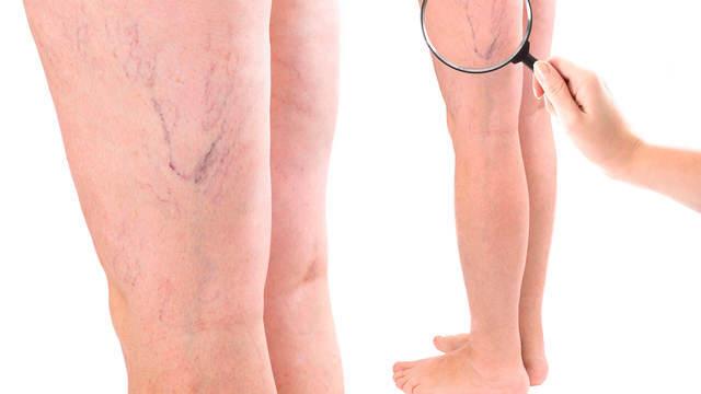Применение пара при лечении варикозного расширения вен