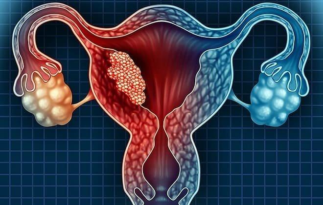 Миома матки: 3 варианта лечения и ситуации, когда не избежать удаления
