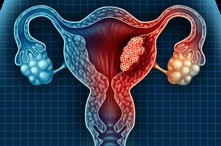 Аденокарцинома матки – болезнь, которую поймут только женщины
