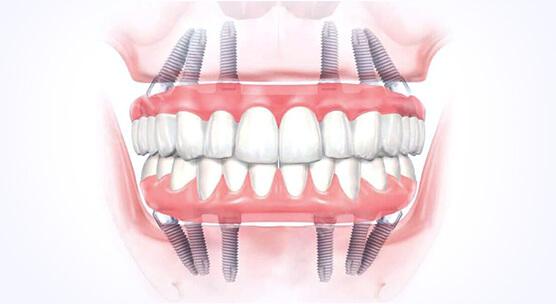 All on 6 имплантация и протезирование зубов