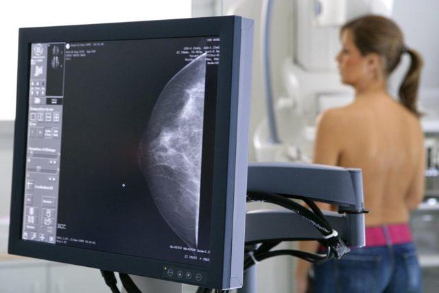 Маммограммы не помогают после 75