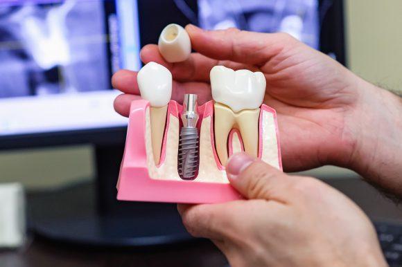Имплантация зубов: важные аспекты