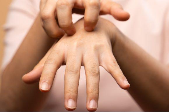Дерматологи посоветовали, как мыть руки и не допускать сухости кожи