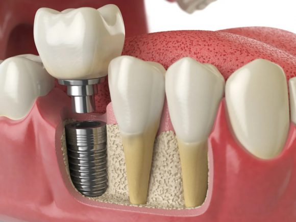 Имплантация – способ вернуть красоту улыбке и здоровье зубам