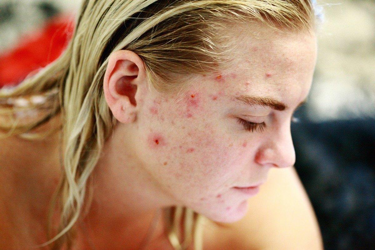 5 действенных советов по уходу за кожей, склонной к угревой сыпи