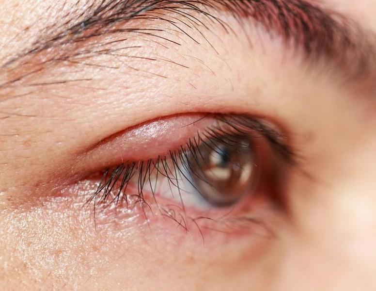 Сухие глаза — признак климакса