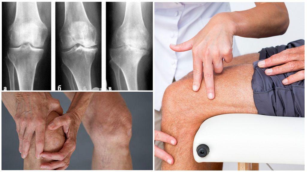 Лечение артроза: что нужно знать