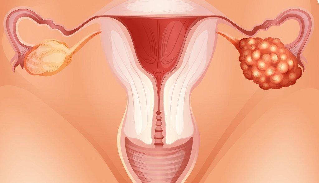 Симптомы, причины и лечение кисты яичника