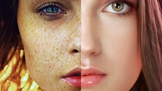 Дерматологи назвали процедуры, способные продлить молодость кожи