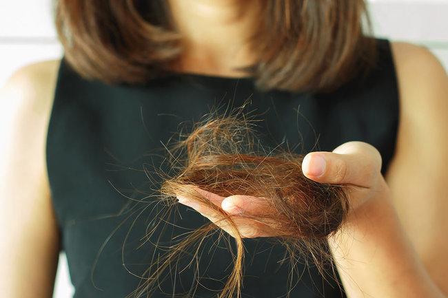 Пять причин выпадения волос