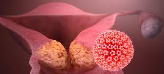 Рак шейки матки: причины и симптомы