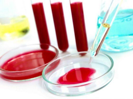 Менопаузу предскажут по анализам крови