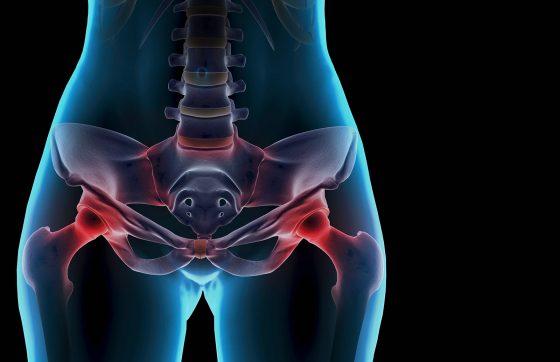 6 изменений в образе жизни для женщин с эндометриозом